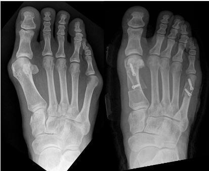 Zasebna ortopedska ordinacija, oprtopedska ordinacija Koper, ortopedija Koper gallery photo no.6