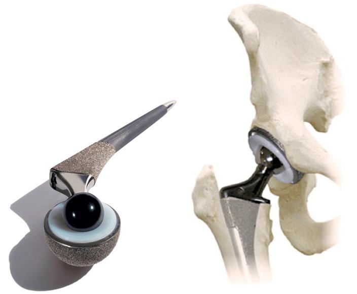 Zasebna ortopedska ordinacija, oprtopedska ordinacija Koper, ortopedija Koper gallery photo no.10