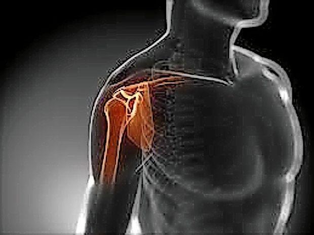 Bolezni ramenskega sklepa - product image