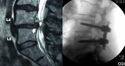 Spinalna stenoza - zožitev hrbteničnega kanala - product image