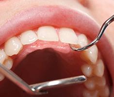 Oskrba obzobnih tkiv – vzdrževanje higiene - product image