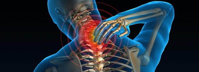 Bolečina v vratu - product image