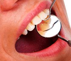 Konzervativa - zdravljenje kariesa - product image
