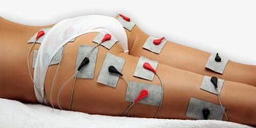 Električna stimulacija mišic - product image