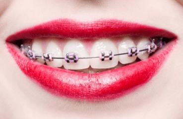 Ortodontija - product image