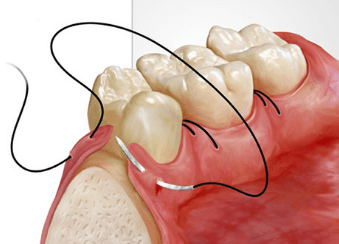 Oralna Kirurgija - product image