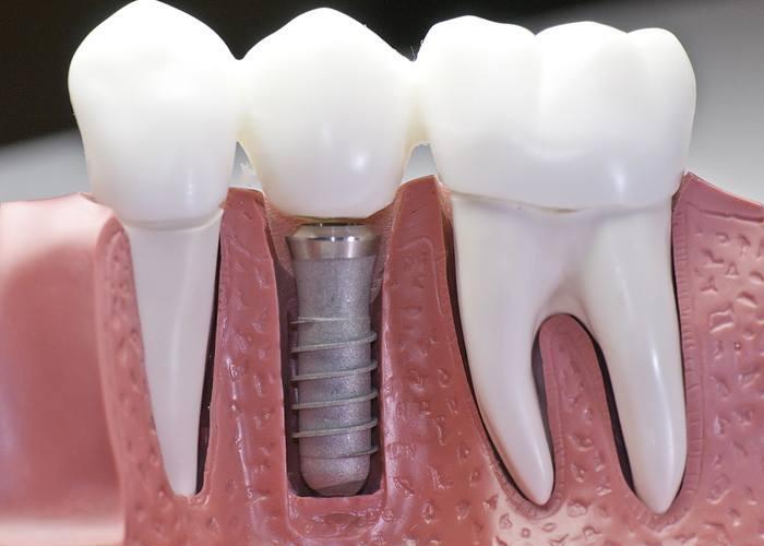 Implantologija - product image